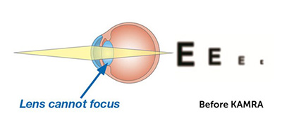 diagram of eye lens illustrating presbyopia before KAMRA treatment